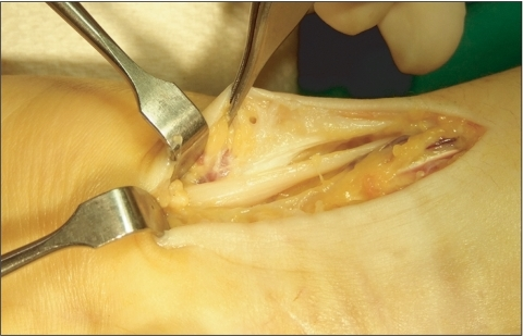 Photograph shows swelling and compression by the surrounding tissue fibrosis of the ulnar nerve at the level of Guyon's canal.
