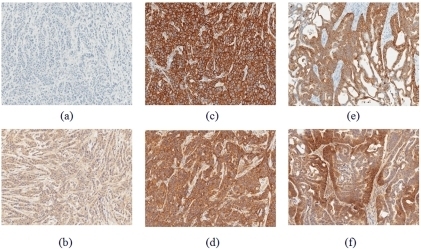 Histological (IHC) images of tumor tissues for tumor with no HER2 expression (A–B) MDA-MB-468, and highly expressed HER2 tumor (C–D) BT-474 and (E–F) NCI-N87.Tumor tissue was extracted from animals 24 hours post HER2-Affibody-DyLight750 injection, fixed in 10%NBF and analyzed by IHC for detection of HER2 status (A,C and E) and Affibody presence (B,D and F).