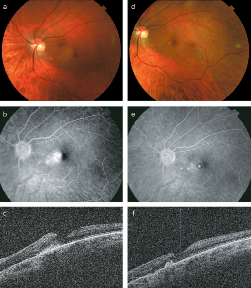A 34-year-old female patient with idiopathic choroidal neovascular membrane (CNVM) in the left eye (case #3). Pre-treatment: Color fundus photograph shows deep subretinal hemorrhage associated with retinal thickening and lipid exudation in the nasal macula (a). Fluorescein angiography demonstrates multiple leakage sites from the CNVM in the nasal macula (b). OCT confirms retinal thickening in the nasal fovea with a hyper-reflective subretinal lesion (central subfoveal thickness 263 μm) (c). Post-treatment: Color fundus photograph (d), fluorescein angiography (e), and OCT (central subfoveal thickness 250 μm) (f) all show a consolidated subretinal scar without persistent leakage or associated retinal thickening, consistent with involution of CNVM. OCT from the adjacent area shows slightly disrupted but mostly preserved photoreceptor layer despite OPDT. The scar appears hyperfluorescent and there is a ring of hypofluorescence corresponding to blockage from pigment migration. There are two small areas of hyperfluorescence nasal to the fovea consistent with window defects.