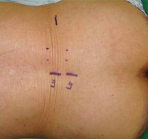 Marking of L4-5 spinous process and iliac crest as surf | Open-i