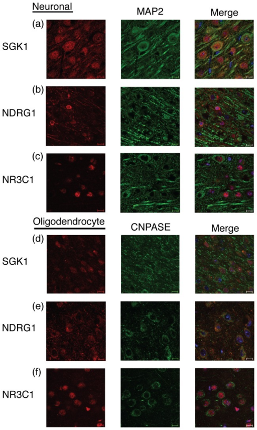SGK1, NDRG1, and NR3C1 basal expression patterns in neurons and oligodendrocytes in the PFC of D2 mice.NDRG1, NR3C1 and SGK1 were co-localized with the neuronal marker MAP2 and the oligodendrocyte marker CNPase. DAPI staining was used as a nuclear marker (right columns). Panels show (from left to right): (a) SGK1 staining, MAP2 staining, co-localization; (b) NDRG1 staining, MAP2 staining, co-localization; (c) NR3C1 staining, MAP2 staining, co-localization; (d) SGK1 staining, CNPASE staining, co-localization; (e) NDRG1 staining, CNPASE staining, co-localization; (f) NR3C1 staining, CNPASE staining, co-localization. Scale bar equals 50 µm.