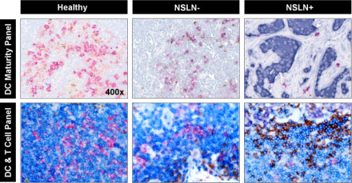 High-resolution IHC Images of DC Clusters in two staining panels. Immunohistochemistry stained images of DC clusters from healthy, NSLN- and NSLN+ patient samples, serially stained in both a DC maturity assessment panel and a T cell colocalization panel. Stains for the maturity panel include: Red (CD1a, Immature DCs), Brown (CD83, Mature DCs), Blue (Hematoxylin, Non-DC cells). Stains for the T cell colocalization panel include: Magenta (CD1a, Immature DCs), Dark Blue (CD3, T cells), Brown (CD20, B cells), Light Blue (Hematoxylin, other cells). The dark purple cells in both panels are pan-cytokeratin-stained tumor cells. All images were taken at 400× resolution.