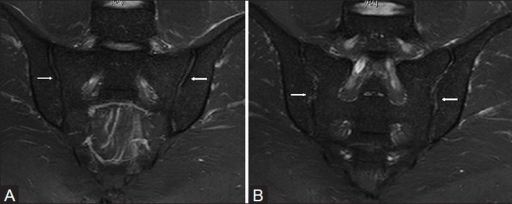 Normal anatomy of the sacroiliac joint in a 26 year old male. (A) Oblique coronal STIR MRI images show smooth and parallel margins of the cartilaginous lower ventral portion of the joint (arrows). (B) Oblique coronal STIR MRI images in more posterior aspect show irregular edges of the fibrous or ligamentous upper dorsal portion of the joint (arrows). Distinction between compartments of sacroiliac joints is possible on MRI images