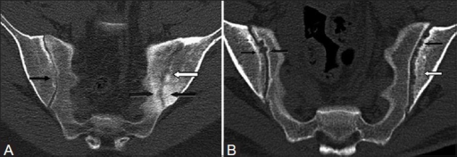 Asymmetrical sacroiliitis. (A) Coronal oblique CT scan in a 51 year old female with psoriasis shows bilateral diffuse reduction in joint spaces, blurring of articular cartilage on the right side (thin black arrow), multiple erosions in the left ilium (white arrow), and subchondral sclerosis on both iliac and sacral sides (thick black arrow). (B) Coronal oblique CT scan in another case shows multiple erosions in the left ilium (black arrow) with subchondral sclerosis (white arrow) and few erosions on the right iliac and sacral surfaces (black arrows)
