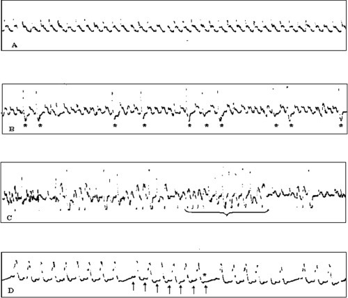 A: sinusal rhythm. B: frequent ventricular ectopic beats (VEB) (*), often in bigeminism. C: episodes of non-sustained ventricular tachy-cardia (VT). The longest one consists of 13 polymorphic beats. D: brady-cardia due to atrio-ventricular block of second degree with the Wenckebach's phenomenon: progressive prolongation of PR interval and then a P wave (*) is not conducted to the ventricule.