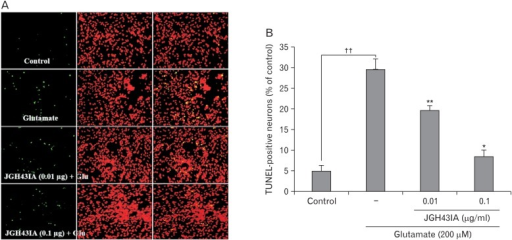Effect of JGH43IA on the glutamate-induced DNA fragmentation. Detection of DNA fragmentation using TUNEL assay in glutamate-treated primary cultured cortical neurons. Cortical neurons were pretreated with JGH43IA 0.01 and 0.1 µg/ml for 24 hours, followed by treatment with glutamate 200 µM for 6 hours. (A) TUNEL-positive cells were stained with green and nuclei were counterstained with PI (red). Glu, glutamate; TUNEL, terminal deoxynucleotidyl transferase-mediated dUTP nick end labeling; PI, propidium iodide. (B) Quantitative analysis of the histograms expressed as the ratio of TUNEL-positive neuronal cells observed in the same field. **P<0.01 and *P<0.05 as compared with glutamate-treated group; ††P<0.01 as compared with control group. Data are expressed as the means±SEM from three independent experiments.