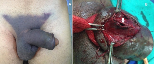 A) penis with a butterfly hematoma in the lower abdominal wall; B) tear of tunica albuginea at the right corpus cavernosum (confirmed by surgical exploration)