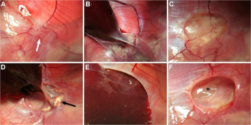 Macroscopic findings.A. Primary repair (d60), polyglecaprone suture absorbed (arrow). B. Gore-Tex (d 60), encapsulated with perihepatic adhesions. Matricel patches were preserved in all (d60; C) but one animal (d90; D, arrow = patch remnant) with high-grade perihepatic adhesions (D). SIS patches were degraded in five animals with bulging of viscera in three (d60, E). Seroma was observed twice (d 60, F, asterisk).