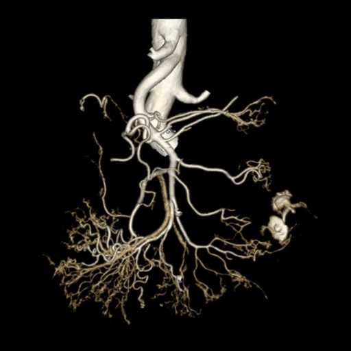 Volume rendering (VR) reconstruction of angio-CT scan clearly demonstrating contrast extravasation.