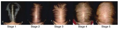 Sinclair scale for female pattern hair loss.Stage 1 is normal. Stage 2 shows widening of the central part. Stage 3 shows widening of the central part and loss of volume lateral to the part line. Stage 4 shows the development of a bald spot anteriorly. Stage 5 shows advanced hair loss.