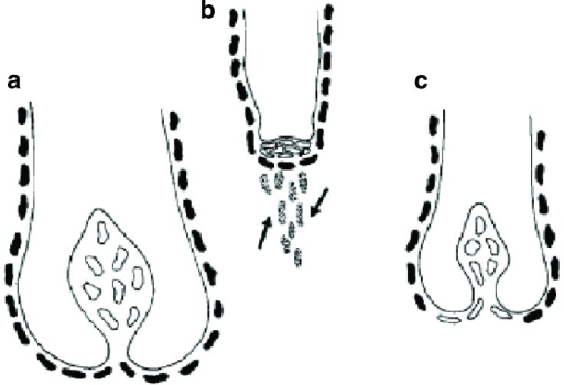 Reduction in dermal papilla cell numbers as an indirect result of changes to the dermal sheath.The sheath cells (solid cells) that surround the follicle are an integral part of the follicle dermis (a). If they are functionally lost (dotted cells indicated by arrows) from the follicle (b), then dermal papilla cells (outline only) move from the papilla to replace them (c). As a result, the papilla and the follicle become smaller. Reproduced with permission from John Wiley & Sons, Inc.12.