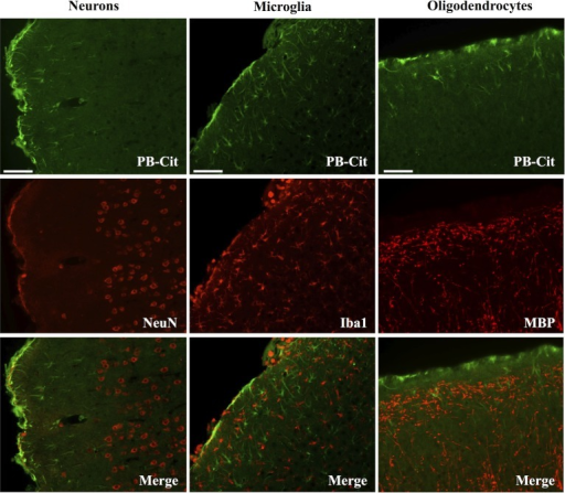 CCI did not affect the status of protein citrullination in neurons, microglia or oligodendrocytes. Sections of cerebral cortex ipsilateral to CCI were probed with mAb 6B3 to label protein-bound citrulline (PB-cit) (upper panels) and either anti-NeuN, Iba1, or MBP to label neurons, microglia, or oligodendrocytes, respectively (middle panels). The merge of the two signals is presented in the lower panels. Data are representative of eight separate experiments. Scale bar = 200 μm.