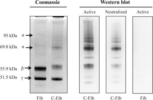 Specificity of anti-protein citrulline mAb 6B3 detection for western blotting. Displayed on the left are two Coomassie-stained profiles showing the protein composition of native fibrinogen (Fib) and citrullinated fibrinogen (C-Fib). The western blot (right) shows three immunoblots in which citrullinated fibrinogen was probed with active mAb 6B3 (Active/C-Fib; left lane); citrullinated fibrinogen was probed with immunoneutralized mAb 6B3 (Neutralized/C-Fib; middle lane); and native fibrinogen was probed with active mAb 6B3 (Active/Fib; right lane).