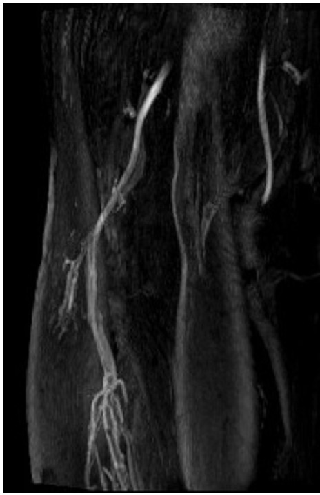 MRI angiogram of the popliteal fossa showing complete occlusion of the popliteal artery in the left leg.
