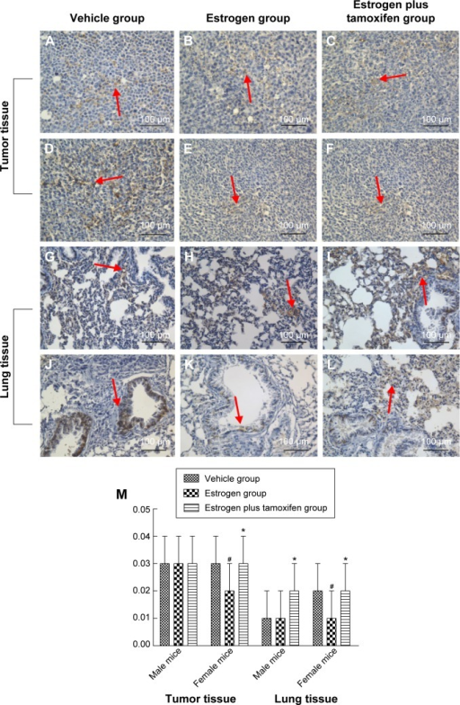 Protein immunohistochemical results of E-cadherin in mice tumor tissue and lung tissue; 400× magnification.Notes: (A–C) Protein immunohistochemical results of E-cadherin in tumor tissues in male mice. (D–F) Protein immunohistochemical results of E-cadherin in tumor tissues in female mice. (G–I) Protein immunohistochemical results of E-cadherin in lung tissues in male mice. (J–L) Protein immunohistochemical results of E-cadherin in lung tissues in female mice. Arrows indicate yellow or brown granules. (M) The average protein optical density of E-cadherin in mice tumor tissue and lung tissue. *P<0.05 versus the estrogen group; #P<0.05 versus the vehicle group; N=6.