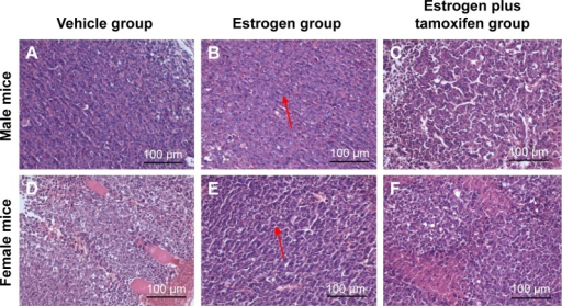The images of H&E staining for tumor tissue; 400× magnification.Notes: (A–C) Representative male mice staining of tumor tissue from each groups. (D–F) Representative female mice staining of tumor tissue from each groups, arrows indicate nodular metastases.Abbreviation: H&E, hematoxylin and eosin.