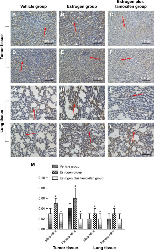 Protein immunohistochemical results of PI3K in mice tumor tissue and lung tissue; 400× magnification.Notes: (A–C) Protein immunohistochemical results of PI3K in tumor tissues in male mice. (D–F) Protein immunohistochemical results of PI3K in tumor tissues in female mice. (G–I) Protein immunohistochemical results of PI3K in lung tissues in male mice. (J–L) Protein immunohistochemical results of PI3K in lung tissues in female mice. Arrows indicate yellow or brown granules. (M) The average protein optical density of PI3K in mice tumor tissue and lung tissue. *P<0.05 versus the estrogen group; #P<0.05 versus the vehicle group; N=6.Abbreviation: PI3K, phosphatidylinositol 3′-kinase.