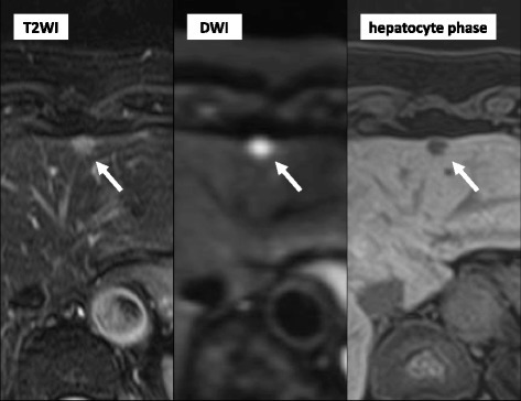 Magnetic resonance imaging (MRI) showing a nodule with slight high intensity on a T2-weighted image and high intensity on a diffusion-weighted image. Gadolinium-ethoxybenzyl-diethylenetriamine pentaacetic acid-enhanced dynamic MRI showing a nodule with defects in the hepatocyte phase in segments 2, 3 (arrow), 4, and 8 of the liver