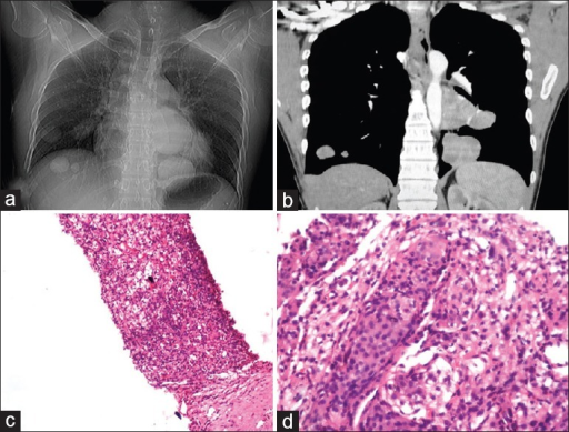 (a) Chest radiograph frontal view shows multiple round soft tissue density lesions of varying sizes (Cannon ball lesions) in both lungs. (b) Post contrast CT scan of chest in coronal section showing multiple heterogeneously enhancing lesions in both lungs. (c) H and E stain of lung biopsy showing replacement of lung parenchyma by lesion. (d) H and E-stained section shows spindle to polygonal cells arranged in sheets and whorls with scattered mitotic figures suggestive of metastases from meningioma