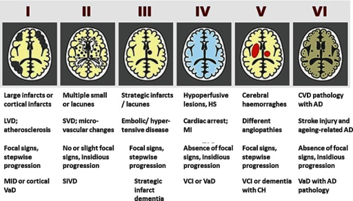 Schematic diagram of different cerebrovascular pathologies associated with dementia. The proposed Newcastle categorisation includes six subtypes [90]. In all the above, the age of the vascular lesion(s) should correspond with the time when the disease began. The post-stroke survivors are usually included in subtypes I–III. While these may not be different from other published subtypes [84], they are practical and simple to use. Cases with extensive WM disease in the absence of significant other features are included under SVD. *Subtype I may result from large vessel occlusion (atherothromboembolism), artery to artery embolism or cardioembolism. Subtype II usually involves descriptions of arteriosclerosis, lipohyalinosis and hypertensive, arteriosclerotic, amyloid or collagen angiopathy. Subtypes I, II and V may result from aneurysms, arterial dissections, arteriovenous malformations and various forms of arteritis (vasculitis). AD Alzheimer's disease, CH cerebral haemorrhage, CVD cerebrovascular disease, MI myocardial infarction, MID multi-infarct dementia, LVD large vessel disease, SIVD subcortical ischaemic vascular dementia, SVD small vessel disease, VCI vascular cognitive impairment, VaD vascular dementia