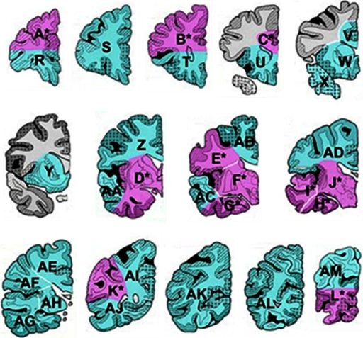 Sampling of postmortem brain tissue for assessing vascular pathology. Coronal blocks from one hemisphere (rostral to caudal) of the cerebrum for an 'ideal' sample for neuropathological assessment. In Newcastle, large sections are taken as indicated by the pink and green blocks identified by the letters. A minimum sample constituting four to six large blocks including S, Y/W, F/J, G/H, AB/AD and AL can be reliably used to determine the burden of vascular pathology [39]