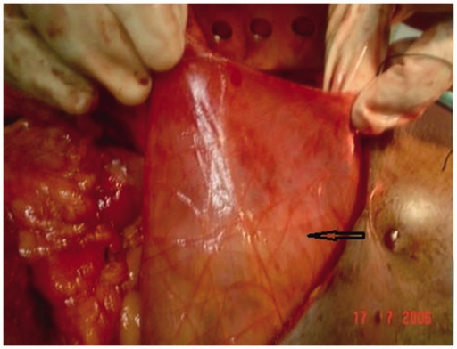 Intra-operative photograph of Case 1, showing a thin hernial sac (marked by an arrow) enclosing the small bowel.