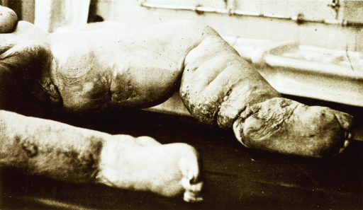 <p>Deformed legs and feet of a woman with elephantiasis.</p>