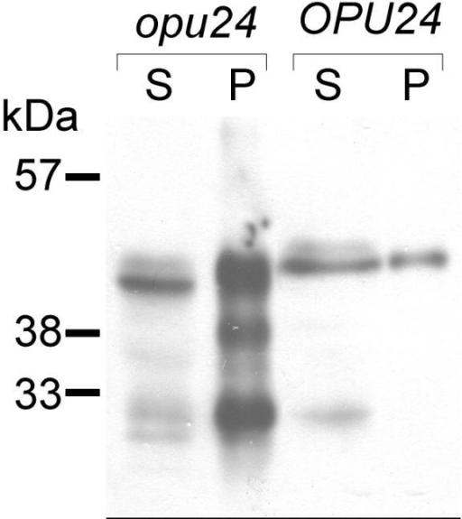 The aggregation pattern of uPA-KDEL in the opu24 mutant. Western blot analysis of uPA. S and P, the supernatant and pellet fractions of the cell lysates of 24–8 V/pNR4 (opu24) and 8 V/pNR4 (OPU24) strains. Pellets were dissolved in a 100-fold volume of starting lysate.