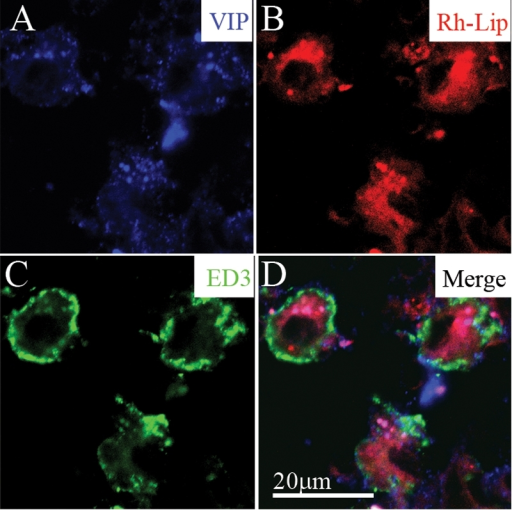 VIP-loaded rhodamine-conjugated-liposomes (VIP-Rh-lip) internalization and VIP expression by ED3-positive macrophages in cervical LN 24 h following IVT injection of VIP-Rh-Lip. A: Free VIP, detected with rabbit anti-VIP antibody (blue) localized within cells containing Rh-Lip (red; B) and expressing ED3 green (C). D: Merge image showing membranous expression of ED3 by cells containing Rh-lip and blue granules within liposomes. The bar in D represents 20 μm in all images. Confocal microscopy optical section is 2 μm in all images. Representative images of two experiments performed on cervical LN from two rats.
