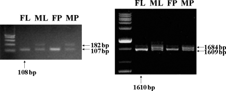 RT-PCR analysis with UGPase1-specific primers. As a result of each RT-PCR using the UGP1-PRT primer set (left) and the UGP1-FRT primer set (right), wild-type (wt) Hwacheong displayed only the expected size fragment in both reactions; whereas the ms-h mutant contained two fragments, one similar to the wt and a second, longer fragment. The same banding pattern was observed in both leaf and panicle. The arrows pointing upwards indicate the fragment size of the wt Hwacheong, and the arrows pointing left represent the fragment size of the ms-h mutant. Abbreviations: FL, fertile leaf; ML: male-sterile leaf; FP, fertile panicle; MP, male-sterile panicle.