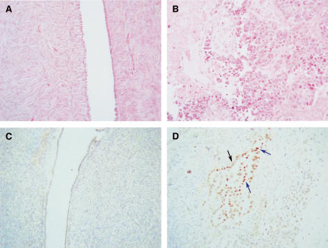 (A and B) Haematoxylin and eosin staining of (A) normal ovary, (B) grade 3 serous tumour. PPARγ staining of the same (C) normal ovary (D) and grade 3 serous ovary. Blue arrows indicate nuclear PPARγ staining, while black indicates cytoplasmic staining.