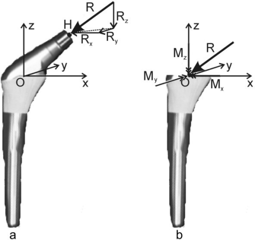 Loading on a hip prosthesis. (a) single force  on the head (b) equivalent combination of force  and moment  on the stem. If  is considered as a vector with three components (Rx, Ry, Rz),  would cause torque around the three axes and is represented by double-arrow-headed vector components (Mx, My, Mz). In this study, only Mz was considered.