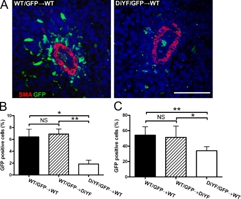 Infiltration of BMDCs is β3 integrin dependent. (A) Immunofluorescent detection of SMA (red) and GFP (green) on B16F10 tumor tissues in WT mice after BMT with WT/GFP or DiYF/GFP donor marrow. Bar, 100 μm. (B) Quantification of GFP-positive cells in B16F10 tumor sections from WT and DiYF mice after BMT with WT/GFP or DiYF/GFP donor marrow. Data represent mean ± SEM. *, P < 0.05; **, P < 0.01. (C) Quantification of GFP-positive cells in wound tissue (day 7) sections from WT and DiYF mice after BMT with WT/GFP or DiYF/GFP donor marrow. Data represent mean ± SEM. *, P < 0.05; **, P < 0.01.