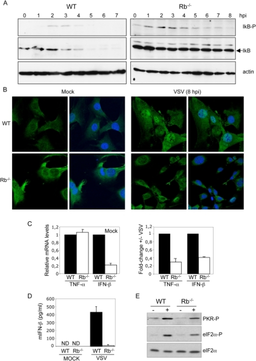 Rb expression is required for NF-kB pathway activation in response to VSV infection.A, Kinetics of IkBα phosphorylation on serine 32 and serine 36 and total IkB upon VSV infection at M.O.I. of 5 PFU/cell in wild type (left panel) or Rb−/− (right panel) primary MEFs were assessed by Western-blotting analysis. B, Wild type or Rb−/− MEFs were infected with VSV at M.O.I. of 5 and 8 h after infection cells were fixed, immunostained for p65 (green) and DAPI (blue). C, Wild type or Rb−/− MEFs were infected with VSV at M.O.I. of 5 and 12 h after infection total RNA was isolated. After reverse transcription the samples were amplified by TaqMan-based QRT-PCR using taqman probes for TNF-α, IFN-β, and GADPDH, and analyzed. The expression levels were determined relative to GAPDH and represented as fold change in Rb−/− cells relative to the expression detected in WT cells. All errors bars indicate mean+/−SE. D, MEFs were infected with VSV at M.O.I. of 5 and 24 h after infection IFN-β production in the cell culture supernatants was measured by ELISA. All errors bars indicate mean+/−SE. ND, not detected. E, Rb−/− or WT MEFs were infected with VSV at M.O.I. of 5 and 7 h after infection, Western-blotting analysis using the indicated antibodies was performed.
