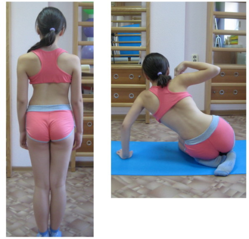 Patient with right thoracic scoliosis functional 3 curve pattern as