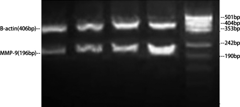 Gel electrophoresis of MMP-9 mRNA and ACTB mRNA PCR in cultured trabecular meshwork cells. MMP=Matrix metalloproteinases.