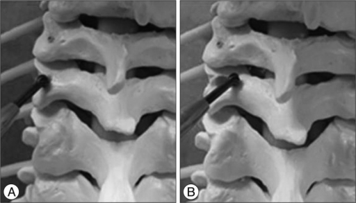 Figure 1 Cervical Pedicle Screw Insertion Using the Technique with Direct Exposure of the