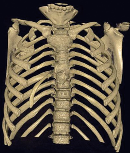 Spiral CT, anterior appearance.A right intrathoracic rib which is articulated on the anterior aspect of the T7 vertebral body and protrudes into the thorax cavity causing collapse of the lower lung parenchyma