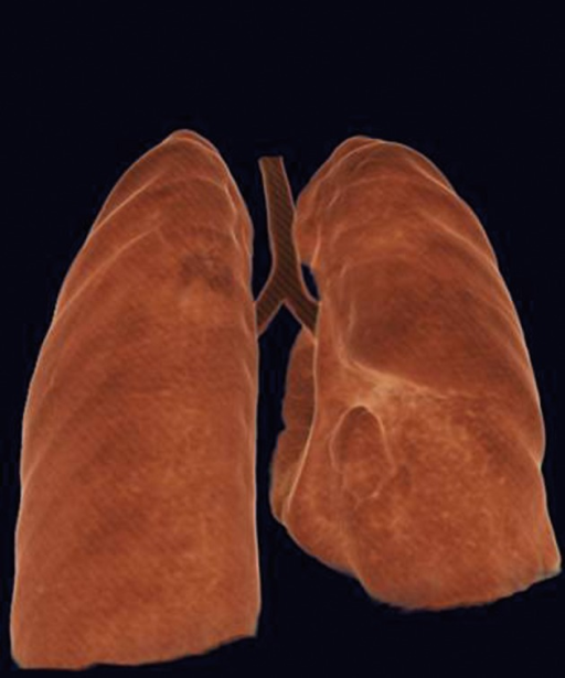 Collapse of the lower lung parenchyma on the right side