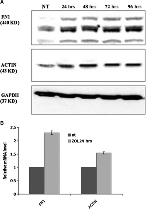 Effect of ZOL on the mRNA expression and protein levels of FN1 and ACTIN. (A) Effect of ZOL 10 μM on the mRNA expression of FN1 and ACTIN, as quantified by real time PCR in MCF-7 cells. (B) Effect of ZOL on FN1 and ACTIN protein levels. MCF-7 cells were incubated with low concentration of ZOL for different times, and protein expression were examined by Western blot developing with the enhanced chemoluminescence reagent (ECL). Each membrane was also probed with GAPDH to confirm equal loading.