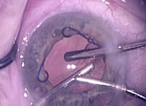 Intraoperative photograph from the operating microscope (surgeon's view). The surgeon's left hand is aspirating cortex with the aspiration handpiece, and the right hand is holding the irrigation handpiece in the anterior chamber. Superiorly (right side of the photograph), the assistant is holding the vitrectomy probe with the tip posterior to the capsule defect.