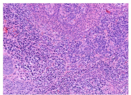 Polymorphic inflammatory infiltrate, predominantly chronic in the lamina propria and with granulocytes within the epithelium (H&E stain, 20x).