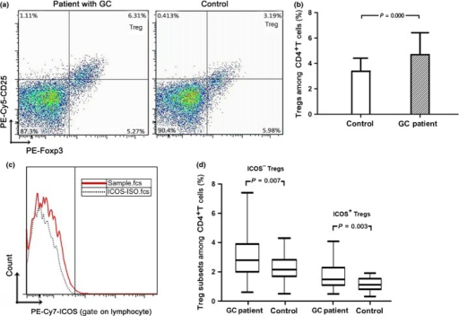Increased numbers of regulatory T cells (Tregs) and inducible costimulator (ICOS)+ Tregs in peripheral blood of gastric cancer (GC) patients. (a) Flow cytometric CD4-gated analysis of CD25+Foxp3+ cells was carried out in a GC patient and a control. (b) The percentage of Tregs among CD4+ lymphocytes was higher in the GC patient than that in the control. (c) PBMCs were stained with anti-human ICOS PE-Cy7 and its isotype. (d) The proportion of ICOS+ Tregs and ICOS− Tregs among CD4+ lymphocytes was statistically increased in the GC group compared to the control group.