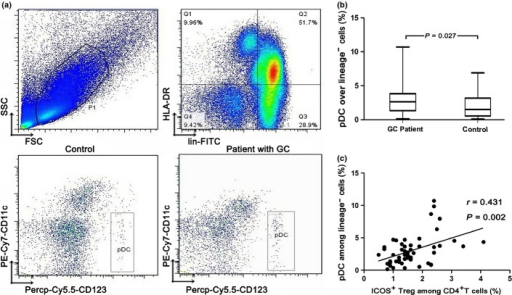 Characterization and quantification of blood plasmacytoid dendritic cells (pDCs). (a) PBMCs isolated from a gastric cancer (GC) patient and a control subject were analyzed for pDC levels by flow cytometry. The first gate was set on lymphocytes and monocytes (P1) and the second gate was set on Lineage− and HLA-DR+ cells (Q1). The pDCs were identified as Lineage−HLA-DR+CD123brightCD11c− cells. (b) Cumulative percentages of pDCs in Lineage− cells of the GC patient and the control subject. The prevalence of pDCs was significantly higher in the GC patient than that in the control donor. (c) The presence of pDCs was significantly associated with an increased number of ICOS+ regulatory T cells (Tregs) in peripheral blood. FSC, forward scatter; SSC, side scatter.