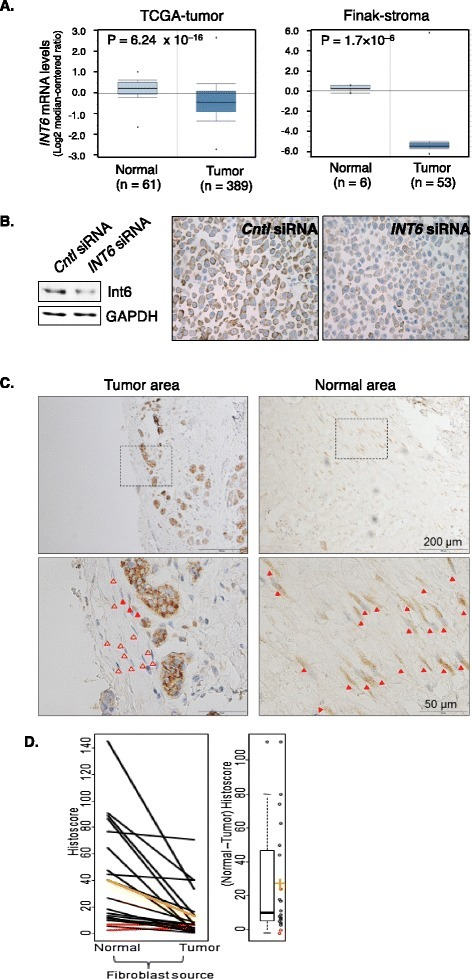 Reduction of Int6 in the fibroblasts in human breast tumors. (A) Left: gene expression data from the breast cancer TCGA project were directly exported from Oncomine, in which mRNA levels of INT6 in normal breast tissue and invasive ductal carcinomas were compared. INT6 mRNA levels were reported to be 50% lower in the latter. Right: stroma gene expression data in the Finak study available in Oncomine were analyzed to show that INT6 mRNA levels were approximately 42 times higher in the tissue surrounding the normal adjacent ducts than in the stroma in the tumor. (B) Control or INT6-repressed MCF7 cells were analyzed by Western blot (left) or IHC (right) by an anti-Int6 antibody. We note that agreeing with our previous finding using GFP-tagging [26], Int6 is mainly cytoplasmic. (C) This is a typical IHC experiment examining fibroblasts in the adjacent normal and tumor region from the same human tumor sample. The top pictures were captured using a 10× objective, and one area in each was then examined by a 40× objective to reveal more details. Closed and open arrowheads mark Int6-positive vs. Int6-negative fibroblasts. (D) The histoscore differences between the normal and tumor regions were compared by the Wilcoxon signed rank test. While there was no difference in Int6 intensity between the normal and tumor regions (p = 0.66), a much lower percentage of Int6-positive fibroblasts was found in the tumor. As a result, all but two samples (marked red) show lower values for tumor fibroblasts. The mean normal and tumor histoscores are marked orange. On the right is a boxplot of the differences between normal and tumor histoscores (individual values shown as circles, mean difference shown in orange). Mean difference ± SEM = 27.0 ± 7.2 (p < 10−3, Wilcoxon signed rank test).