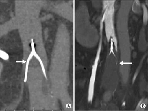 Examples of filter thrombus on follow-up CT. (A) Image from a 57-year-old man with a pelvic bone fracture and femoropopliteal deep vein thrombosis who had a Celect filter inserted preoperatively. After 14 days, follow-up CT scan showed filter thrombus within inferior vena cava filter (arrow). (B) Image from a 51-year-old woman with cerebral hemorrhage and popliteal vein thrombosis who received a Celect filter inserted for prevention of further pulmonary embolism. After 11 days, follow-up CT scan showed filter thrombus with total thrombotic occlusion of inferior vena cava filter distal to the filter (arrow).
