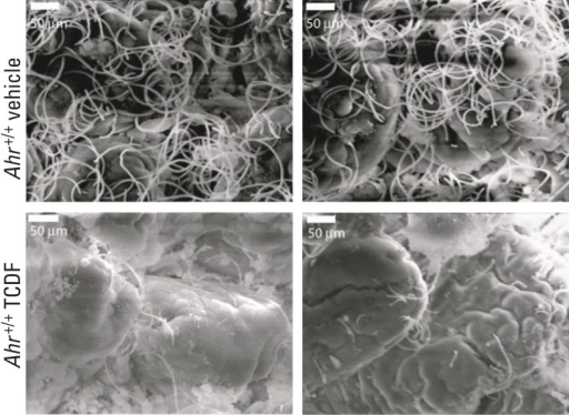 Scanning electron microscope images show dense networks of bacteria in the small intestines of control mice (top), which were dramatically depleted in the small intestines of TCDF-treated mice (bottom).Source: Zhang et al. (2015)3