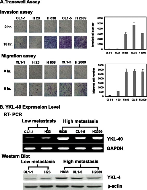 The effect of YKL-40 expression level on the invasion and migration abilities of the NSCLC cell lines. a The five NSCLC cell lines were divided into low metastasis (CL1-1, H23) and high metastasis (H838, CL1-5, H2009) groups by invasion and migration assay. b The YKL-40 expression level analysis by reverse transcription polymerase chain reaction (RT-PCR) and Western blot: indicating that the low and high metastasis groups expressed reduced and increased levels of YKL-40 mRNA and protein, respectively