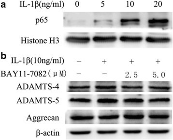 Modulation of IL-1β-dependent expression of ADAMTS-4 and ADAMTS-5 expression by NF-κB signaling in human NP cells. a Western blot analysis of p65 nucleoproteins after treatment of NP cells with IL-1β. b Western blot analysis indicates that treatment with NF-κB inhibitor completely abolished ADAMTS-4 and ADAMTS-5 protein induction by IL-1β and the level of aggrecan was significantly increased. Data are expressed as mean ± SD from three independent experiments