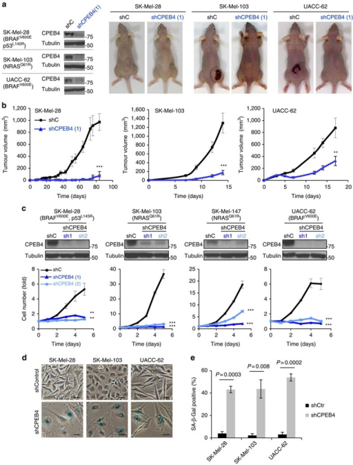 Essential cell-autonomous role of CPEB4 in melanoma growth.(a) Representative examples of animals subcutaneously implanted with SK-Mel-28, SK-Mel-103 or UACC-62 cells expressing control shRNA (shC) or CPEB4 shRNA (sh1). Key melanoma-associated mutations in the indicated cell lines are listed in parenthesis. Panels on the left correspond to immunoblots for visualization of the efficiency of the CPEB4 shRNA-depleting constructs in the different cell lines. (b) Differential tumour growth upon subcutaneous implantation of cells in immunosuppressed mice in a. N=5 mice per group. (c, upper) Depletion of CPEB4 in the indicated cell lines upon lentiviral-driven transduction of two validated shRNA for CPEB4 (sh1 and sh2) shown by immunoblotting using cells expressing a shRNA control (shC) as a reference. (lower) Melanoma cell proliferation after transduction of control or CPEB4 shRNAs. Graphs depict relative cell numbers at the indicated time points obtained from three independent experiments in triplicate. (d) Representative images of SA-β-Gal staining (blue) of the indicated melanoma cell lines expressing control or CPEB4 shRNAs. Scale bars, 20 μm. (e) Percentage of SA-β-Gal-positive cells from d. Error bars represent s.e.m. from three independent experiments. Student's t-test and ANOVA P values are indicated or represented as ***P<0.001, **P<0.01. ANOVA, analysis of variance.